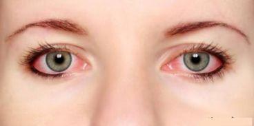 نکات آرایشی برای چشمهای حساس