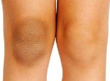علت تیرگی و سیاهی آرنج و زانو و روش درمان آن